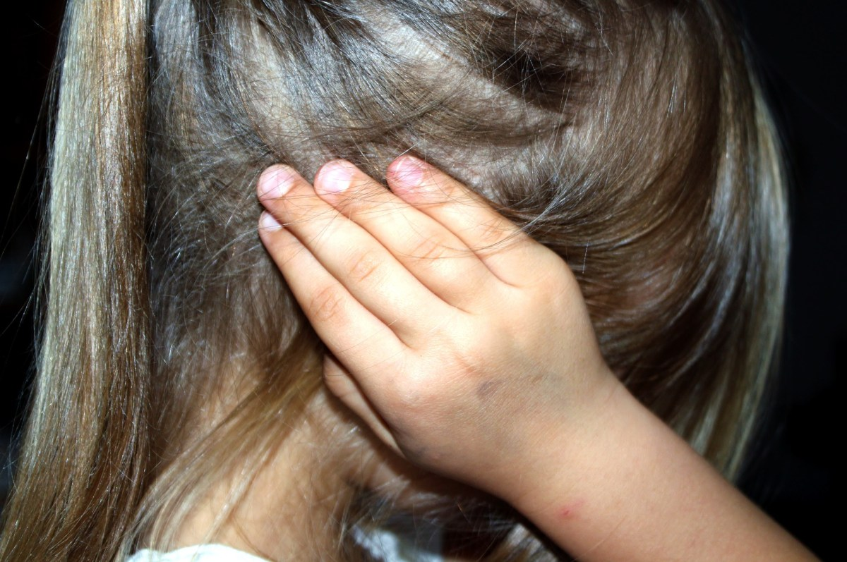 Young girl with hand over hear ear. Tinnitus concept.