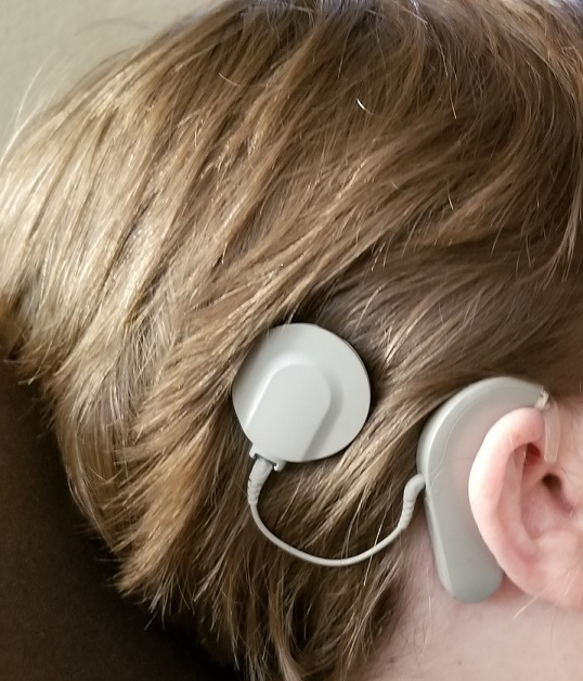 Close-up of Robin's right ear and head, with cochlear implant and processor.